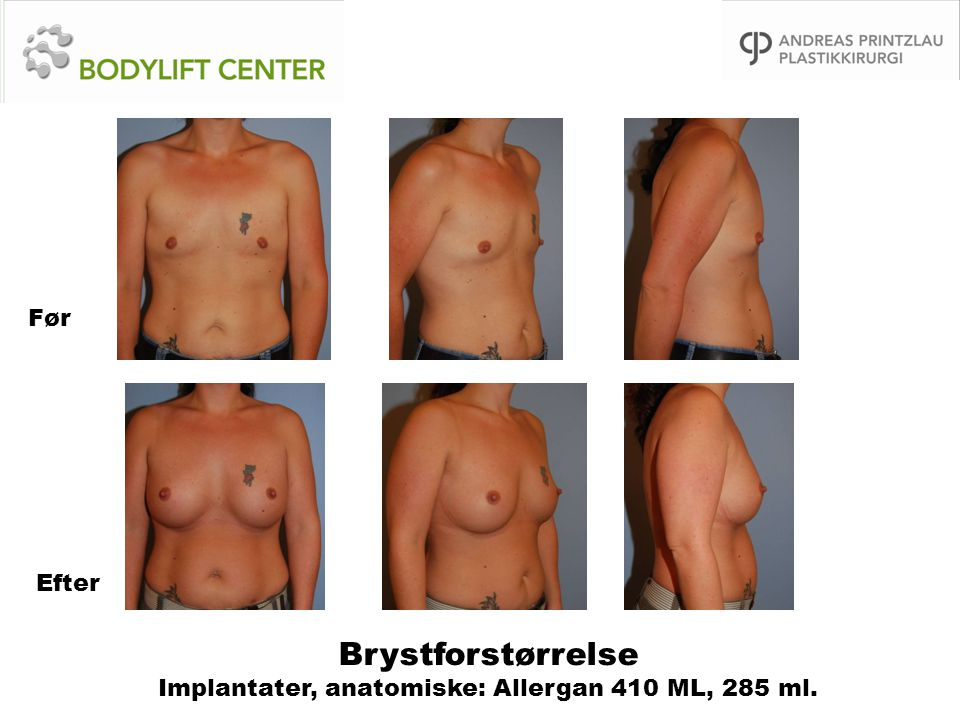Brystforstørrelse Implantater, anatomiske: Allergan 410 ML, 285 ml.