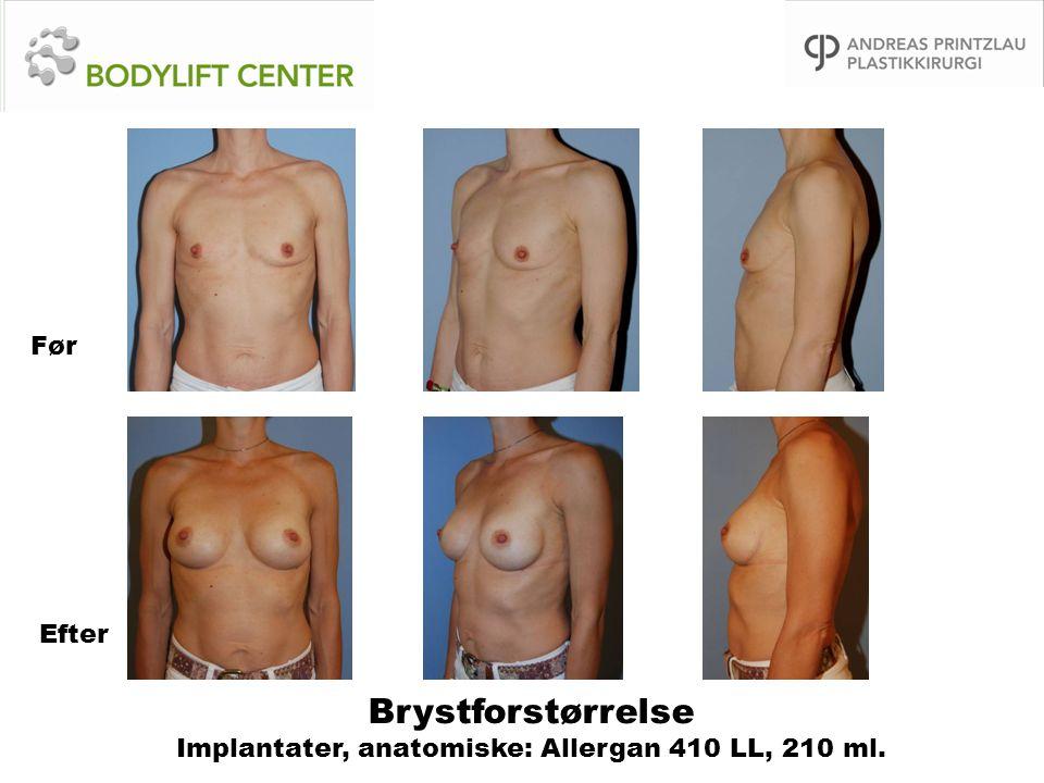 Brystforstørrelse Implantater, anatomiske: Allergan 410 LL, 210 ml.