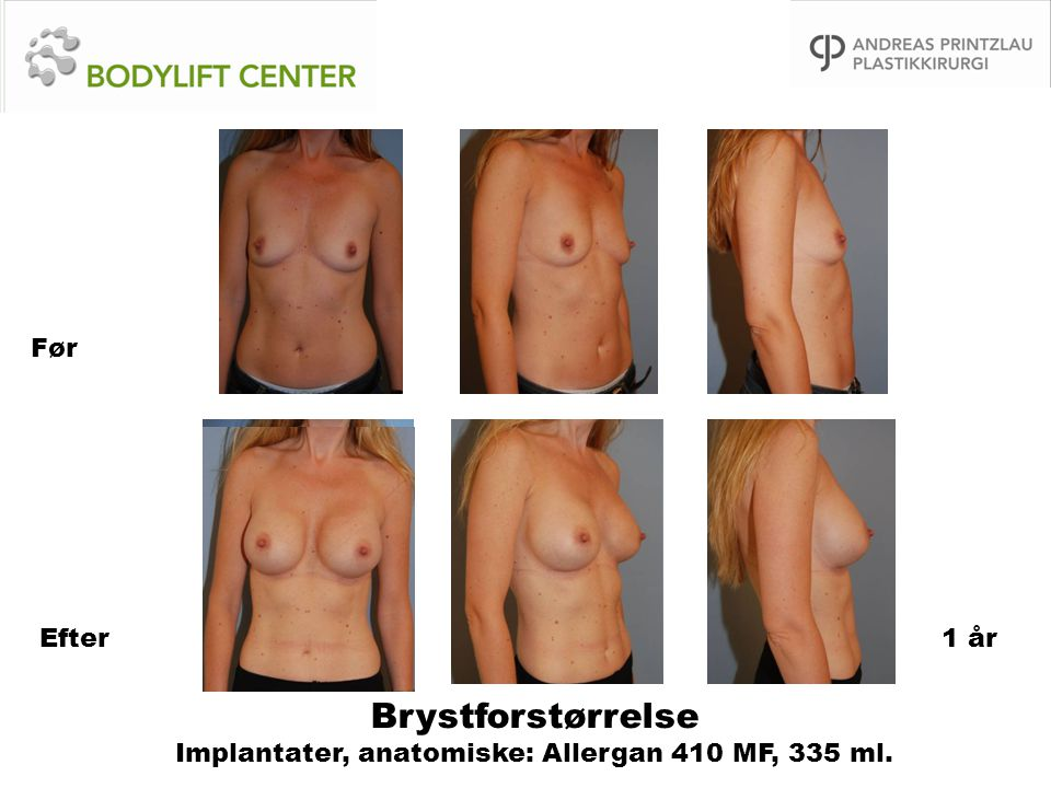 Brystforstørrelse Implantater, anatomiske: Allergan 410 MF, 335 ml.