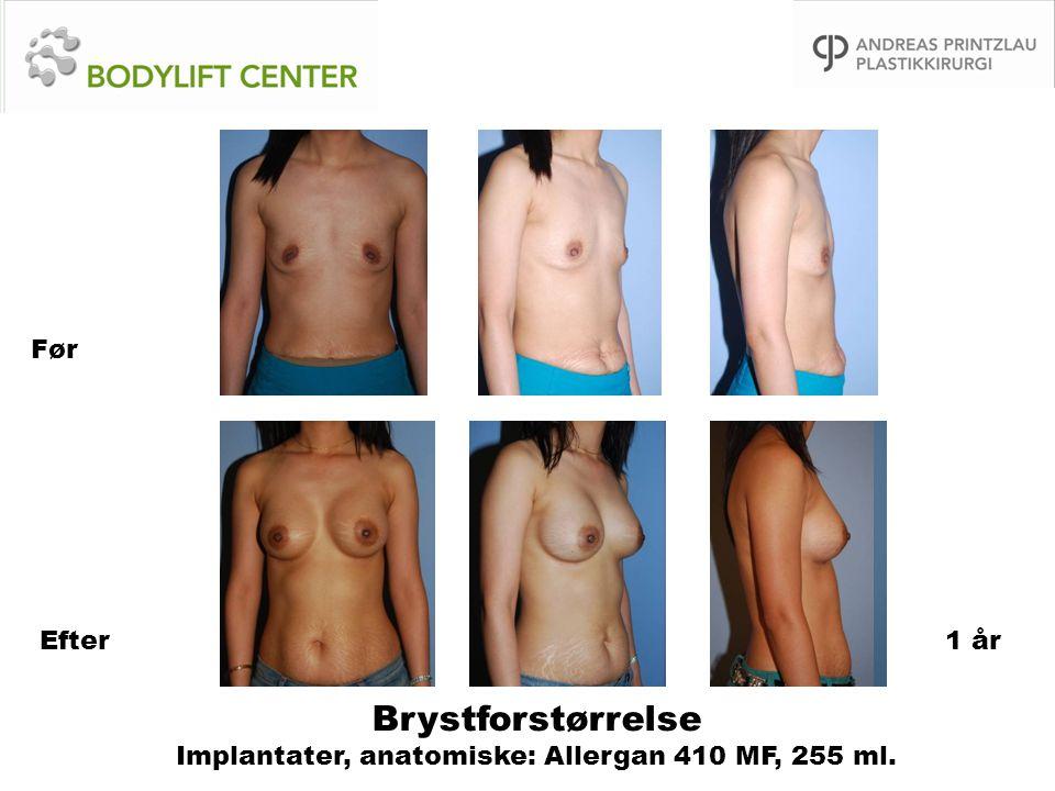 Brystforstørrelse Implantater, anatomiske: Allergan 410 MF, 255 ml.