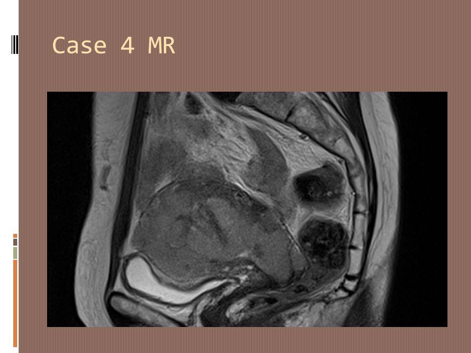 Case 4 MR