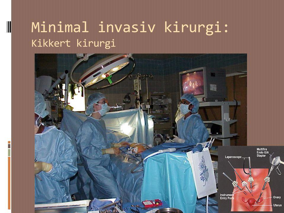 Minimal invasiv kirurgi: Kikkert kirurgi