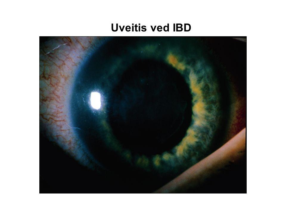 Uveitis ved IBD