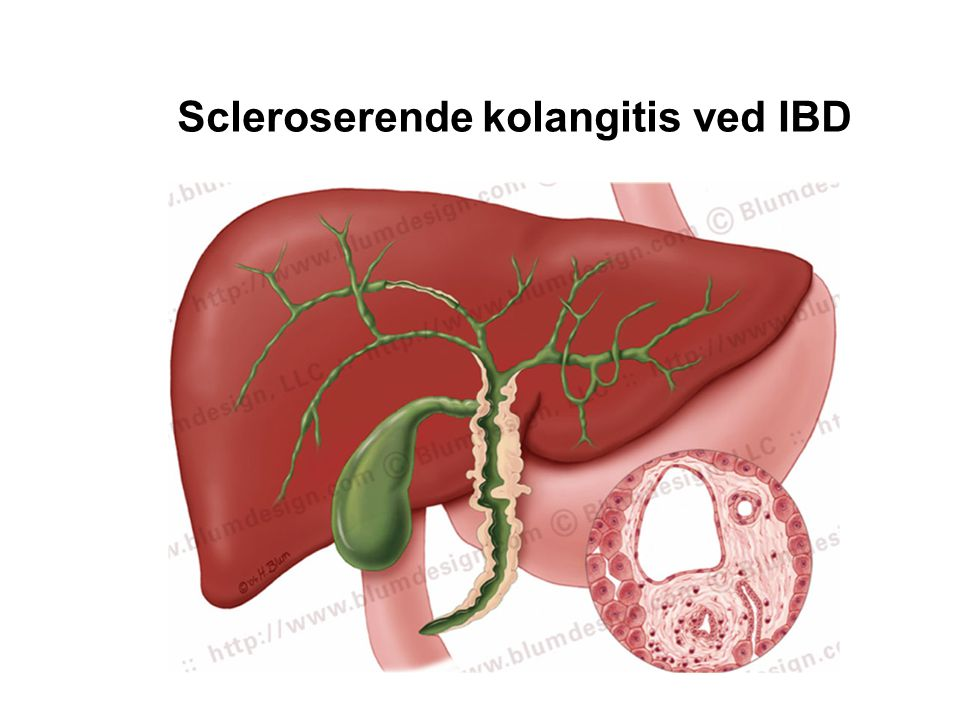 Scleroserende kolangitis ved IBD