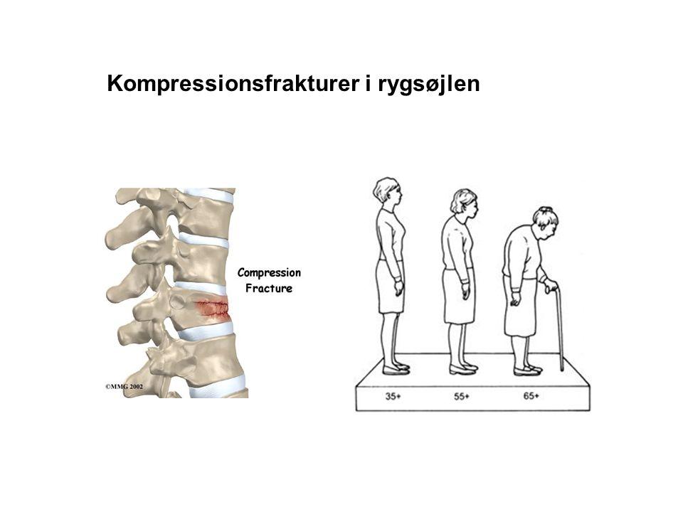 Kompressionsfrakturer i rygsøjlen