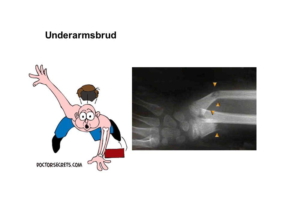 Underarmsbrud