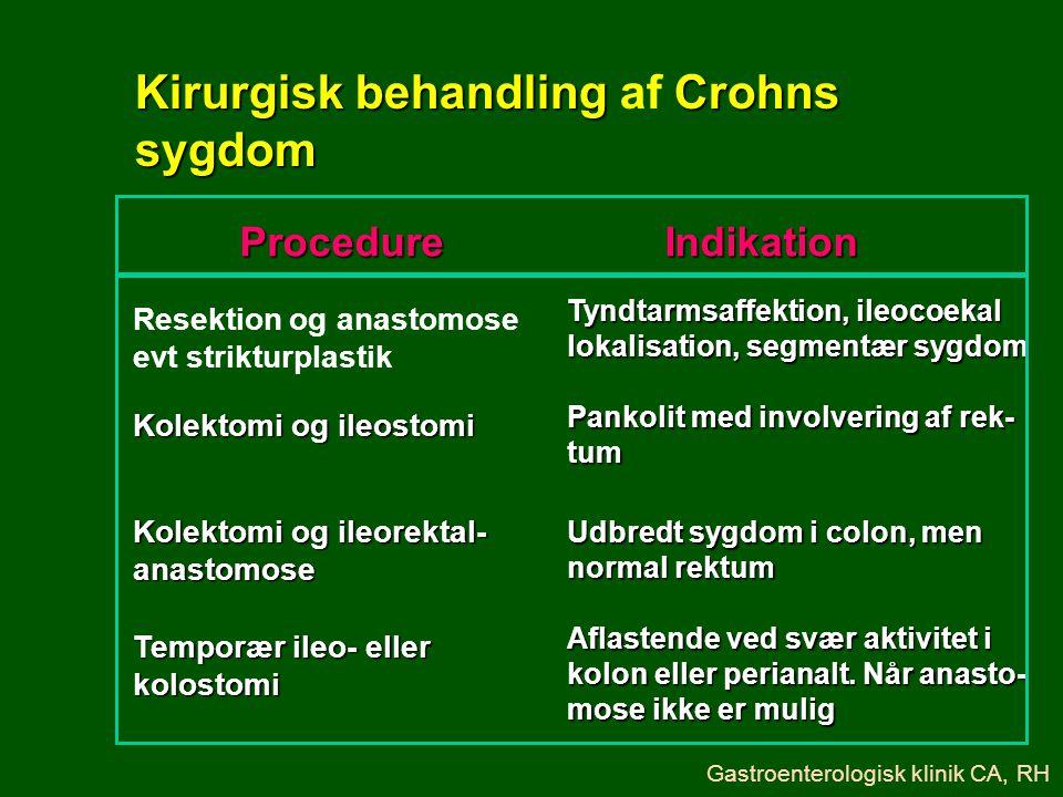 Kirurgisk behandling af Crohns sygdom
