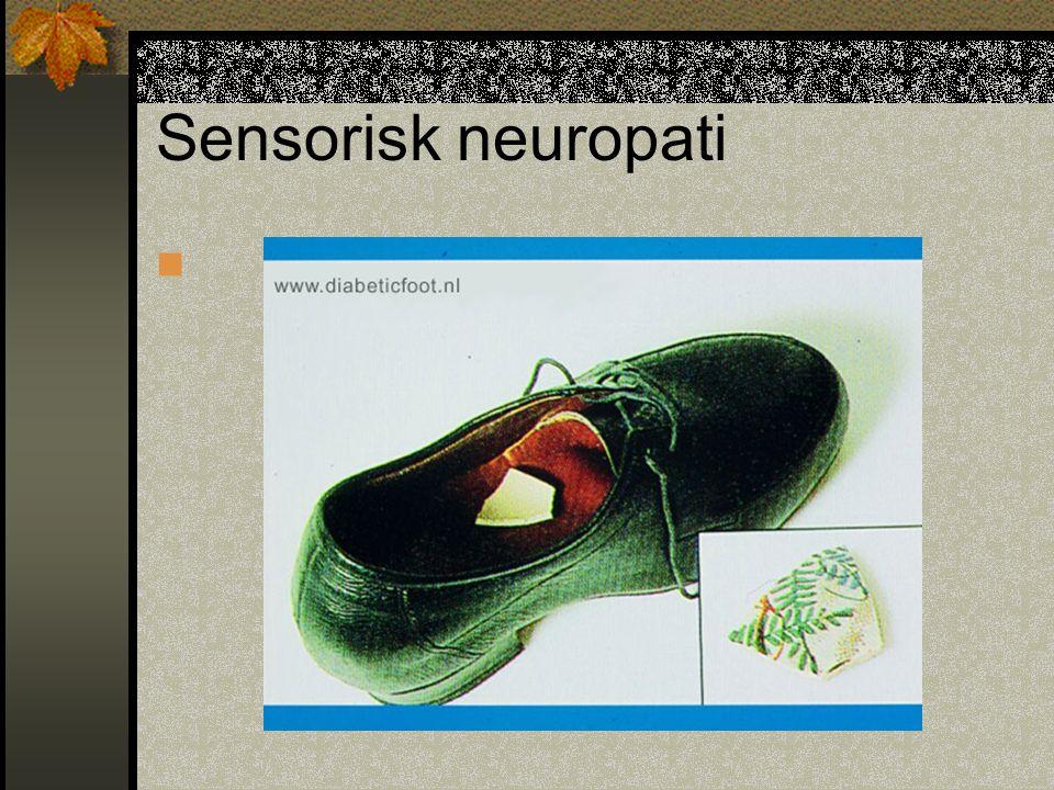 Sensorisk neuropati