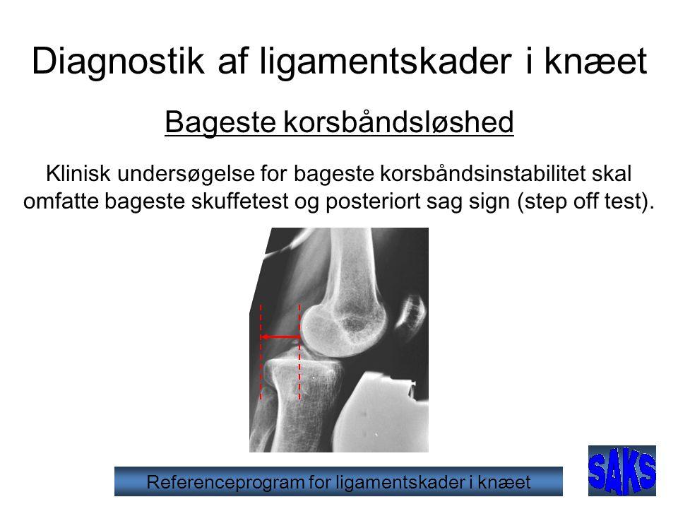 Diagnostik af ligamentskader i knæet