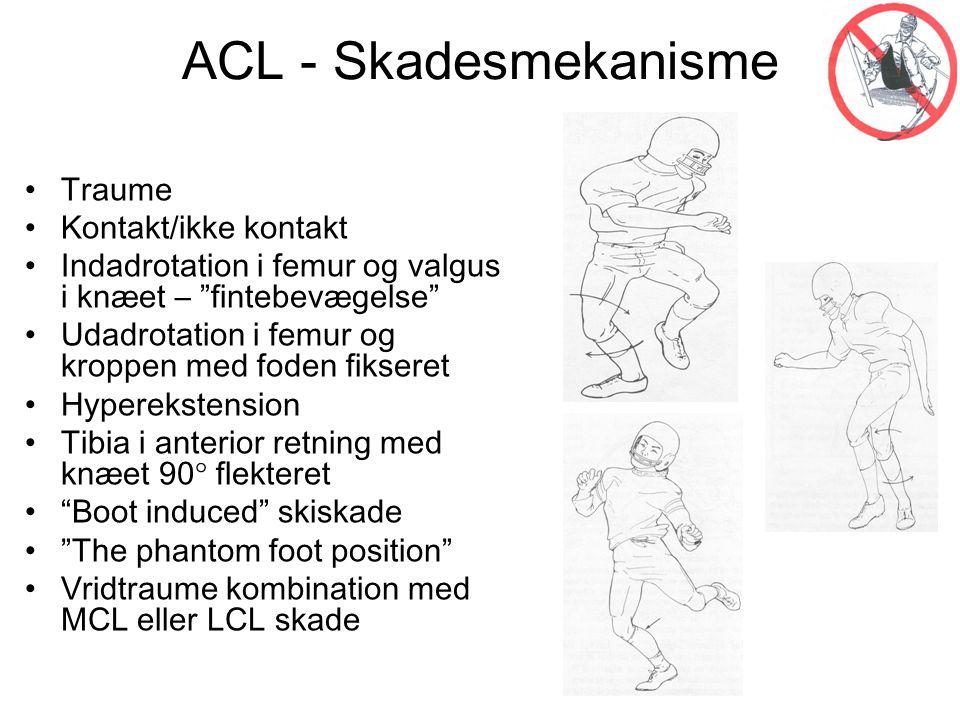 ACL - Skadesmekanisme Traume Kontakt/ikke kontakt