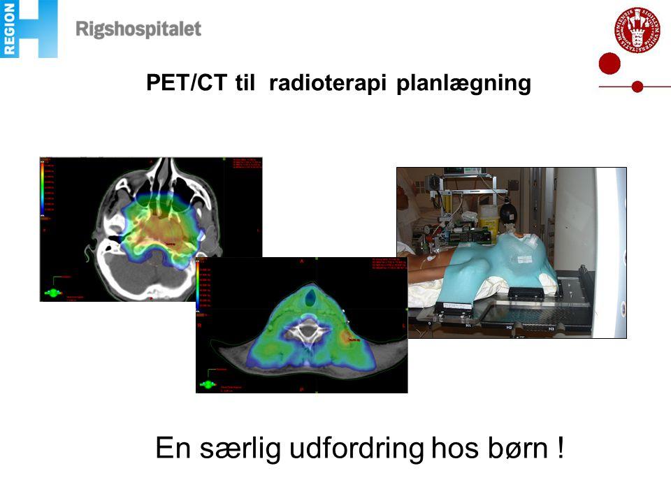 PET/CT til radioterapi planlægning