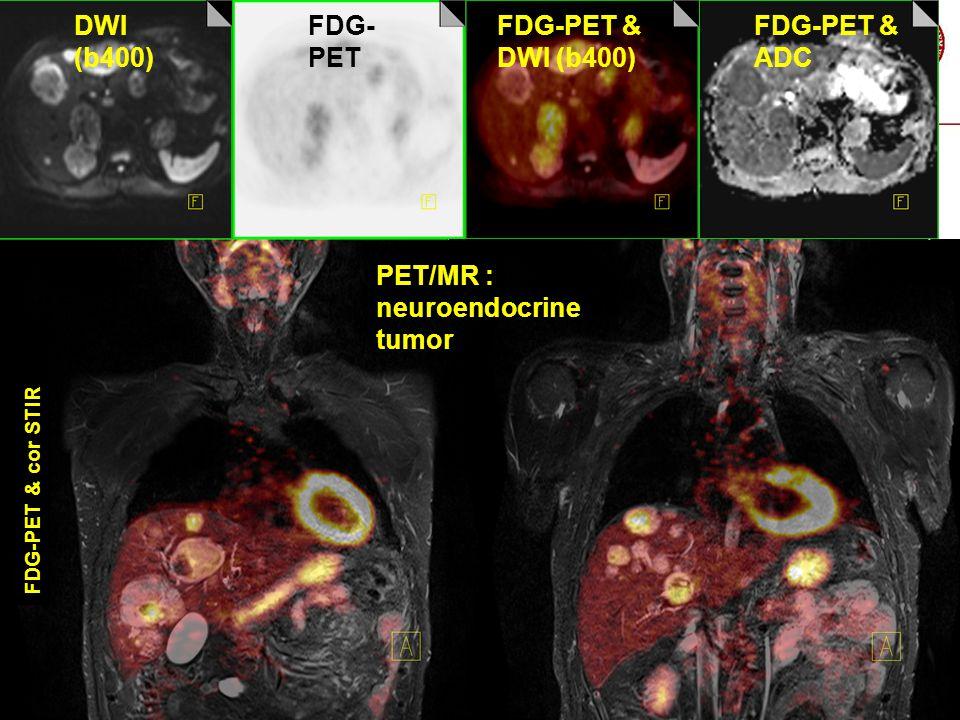 PET/MR : neuroendocrine tumor
