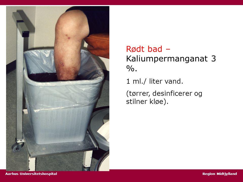 Rødt bad – Kaliumpermanganat 3 %.