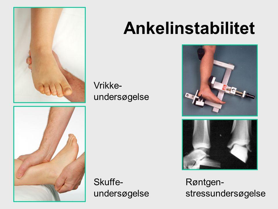 Ankelinstabilitet Vrikke-undersøgelse Skuffe-undersøgelse