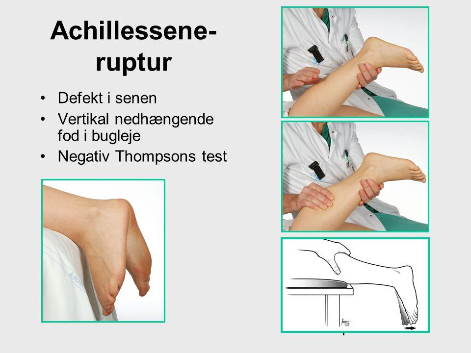 Achillessene-ruptur Defekt i senen Vertikal nedhængende fod i bugleje