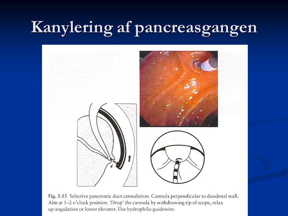 Kanylering af pancreasgangen