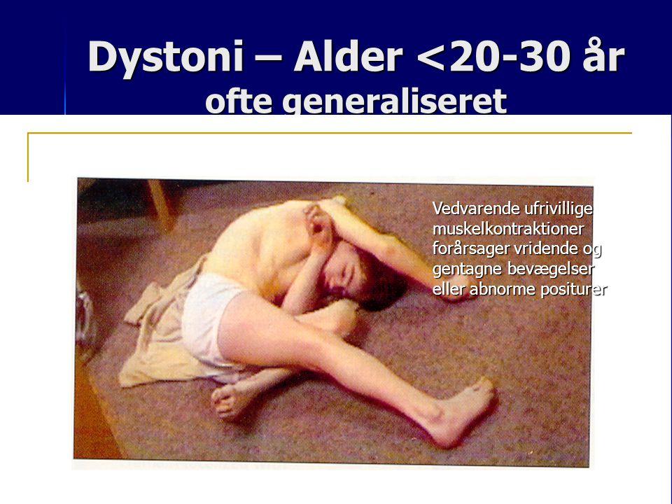 Dystoni – Alder <20-30 år ofte generaliseret
