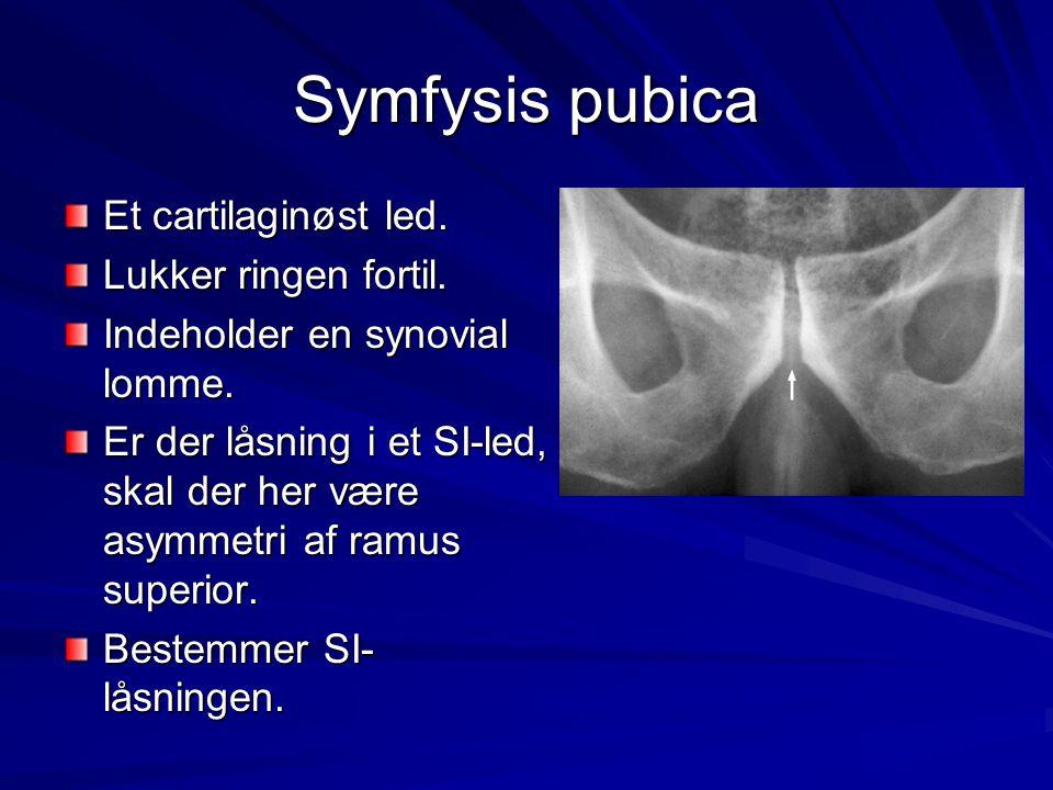 Symfysis pubica Et cartilaginøst led. Lukker ringen fortil.