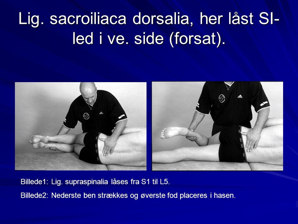 Lig. sacroiliaca dorsalia, her låst SI-led i ve. side (forsat).