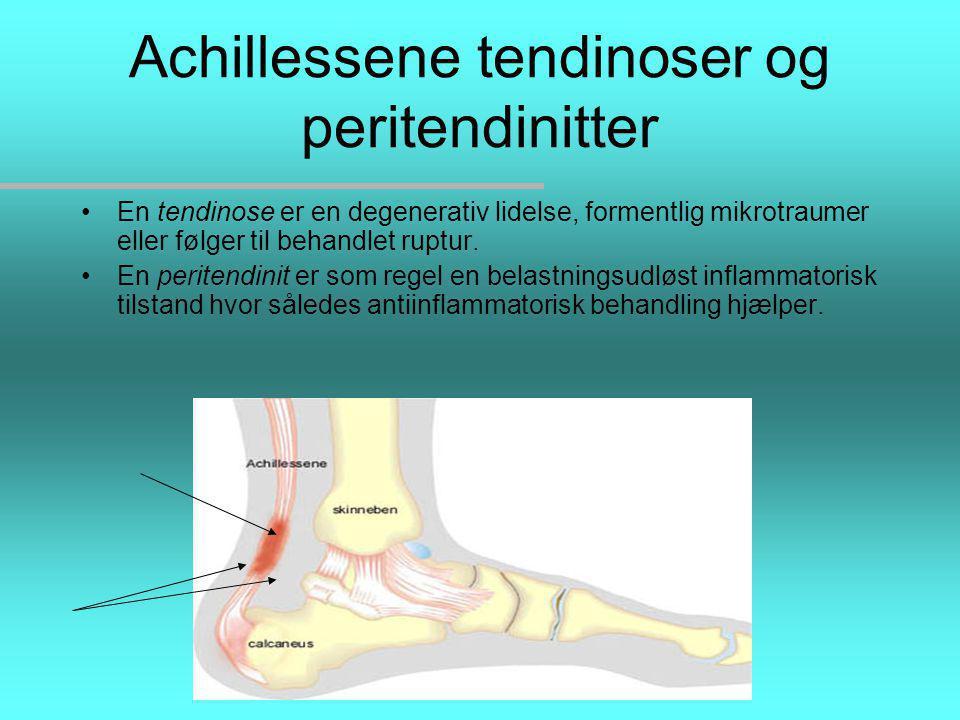Achillessene tendinoser og peritendinitter