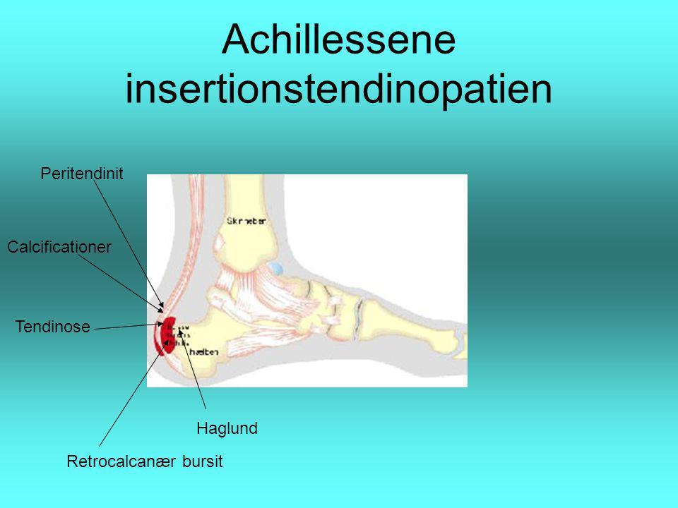 Achillessene insertionstendinopatien