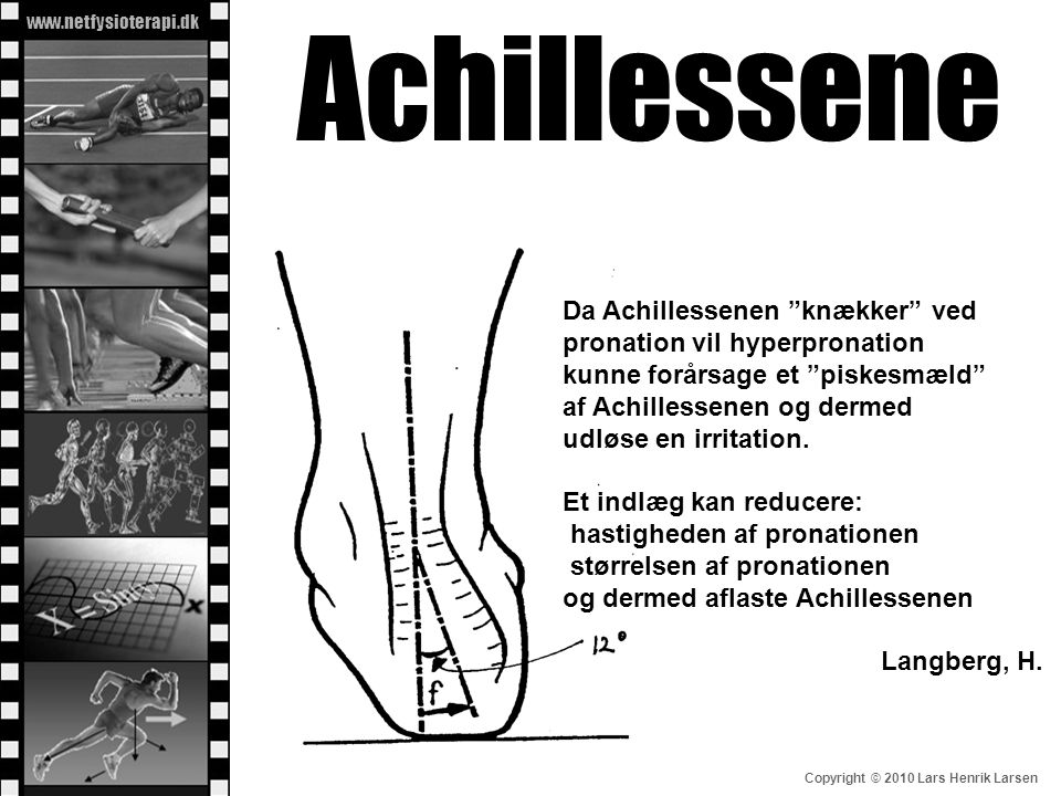 Achillessene Da Achillessenen knækker ved