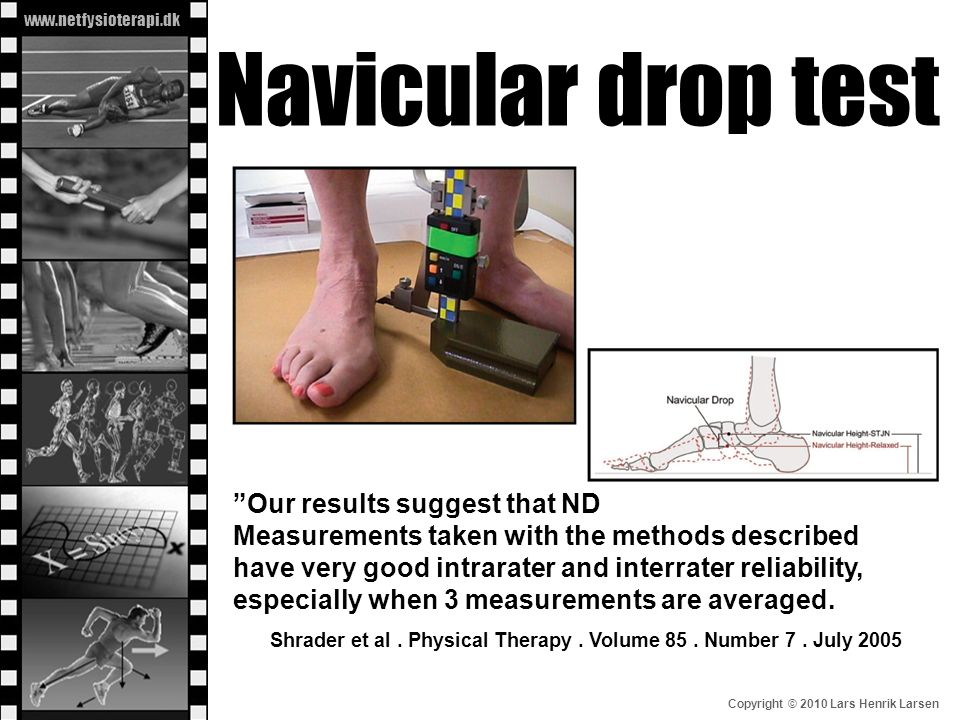 Navicular drop test Our results suggest that ND