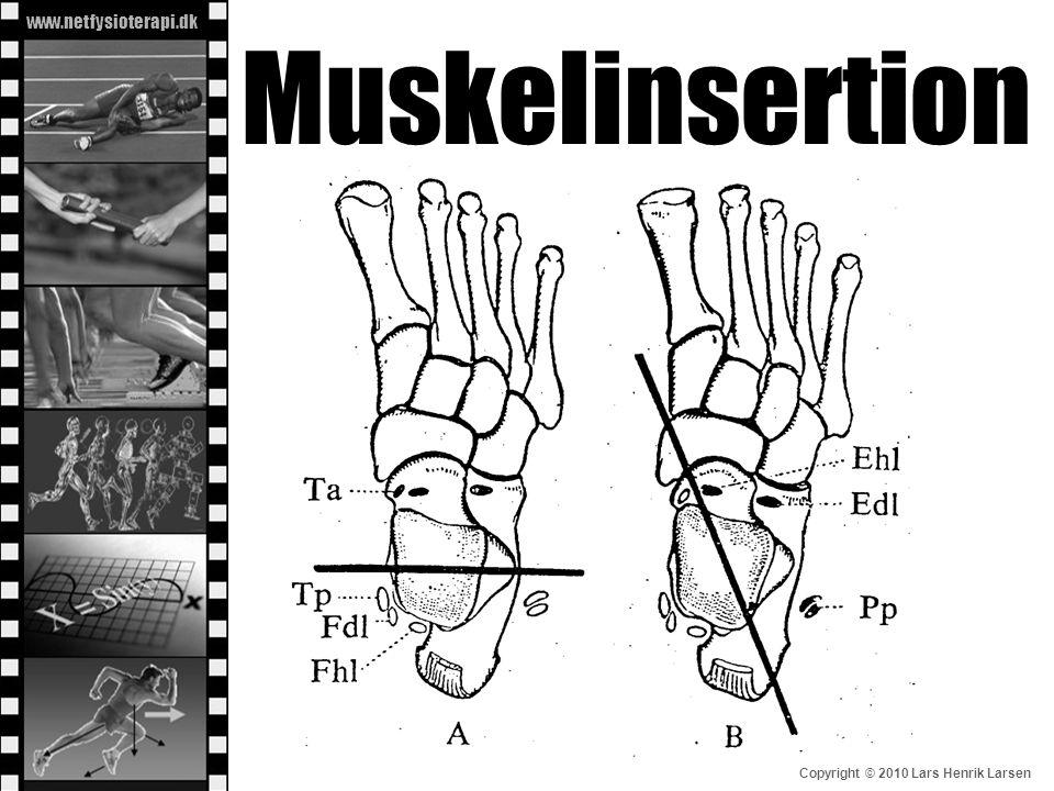 Muskelinsertion