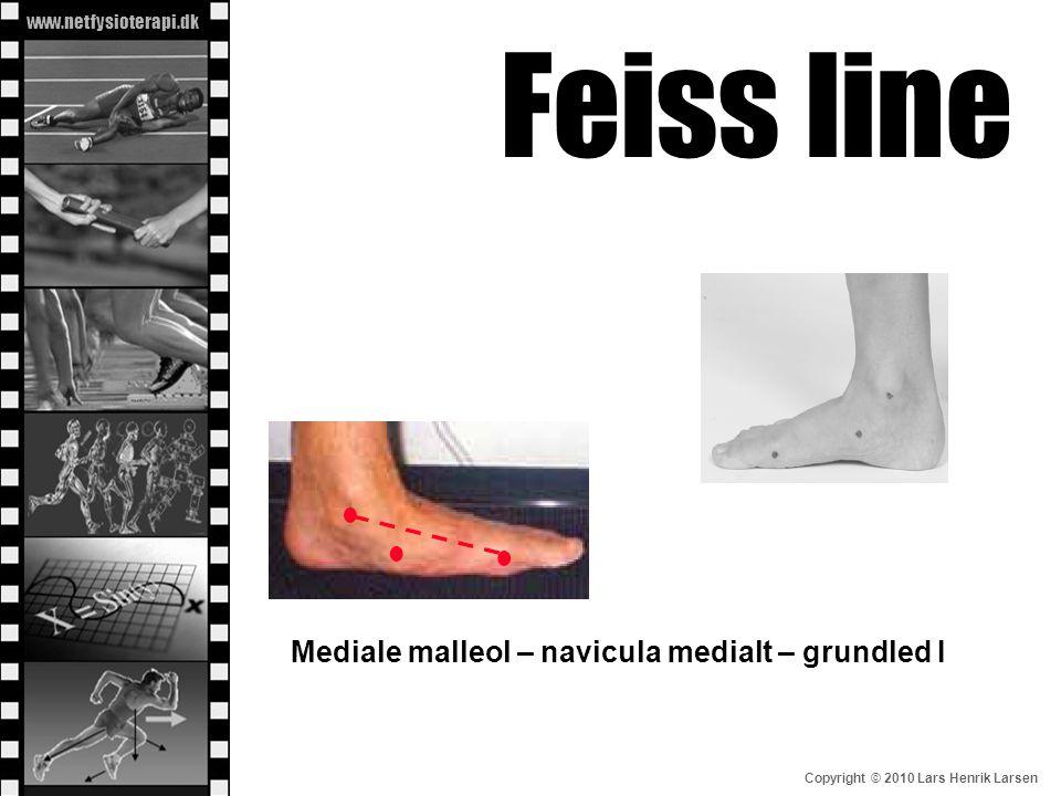 Feiss line Mediale malleol – navicula medialt – grundled I