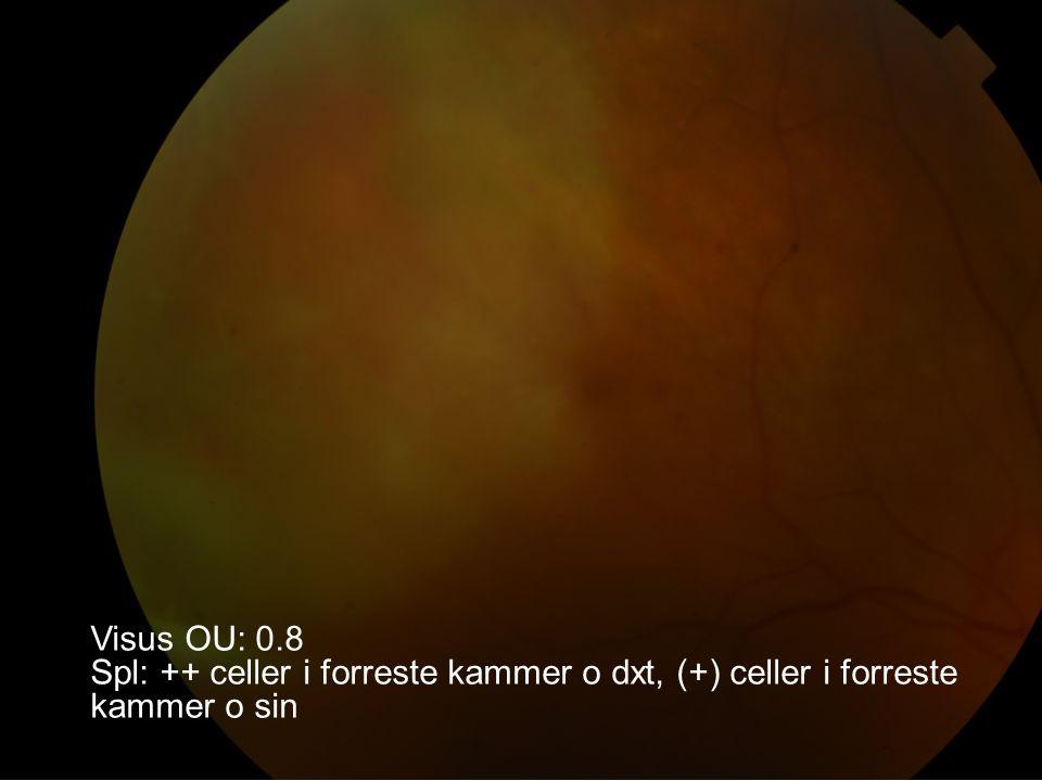 Visus OU: 0.8 Spl: ++ celler i forreste kammer o dxt, (+) celler i forreste kammer o sin