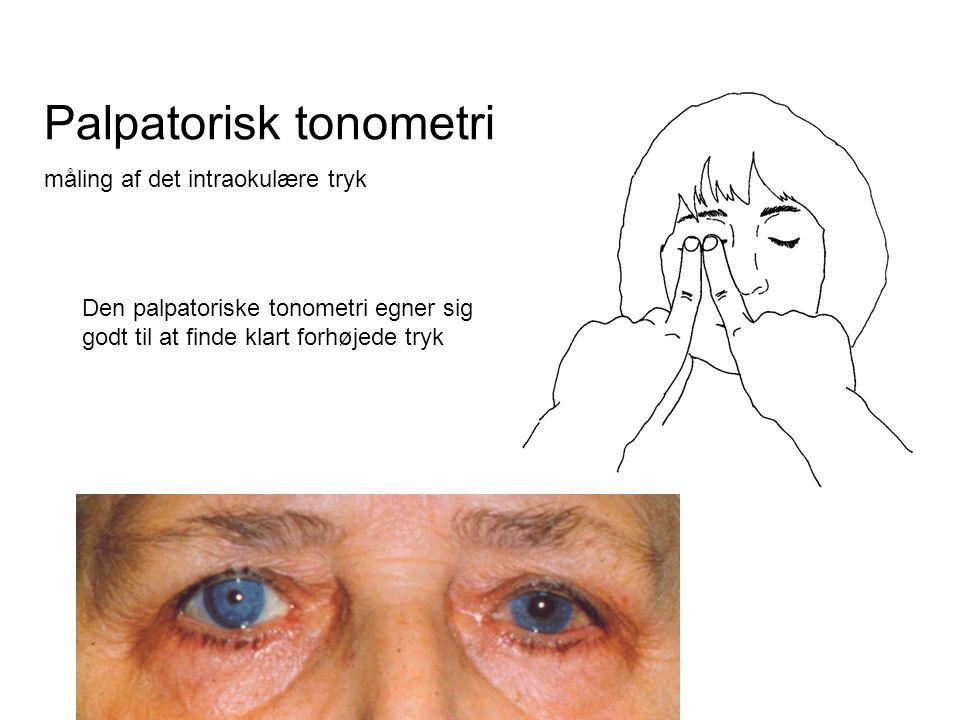 Palpatorisk tonometri