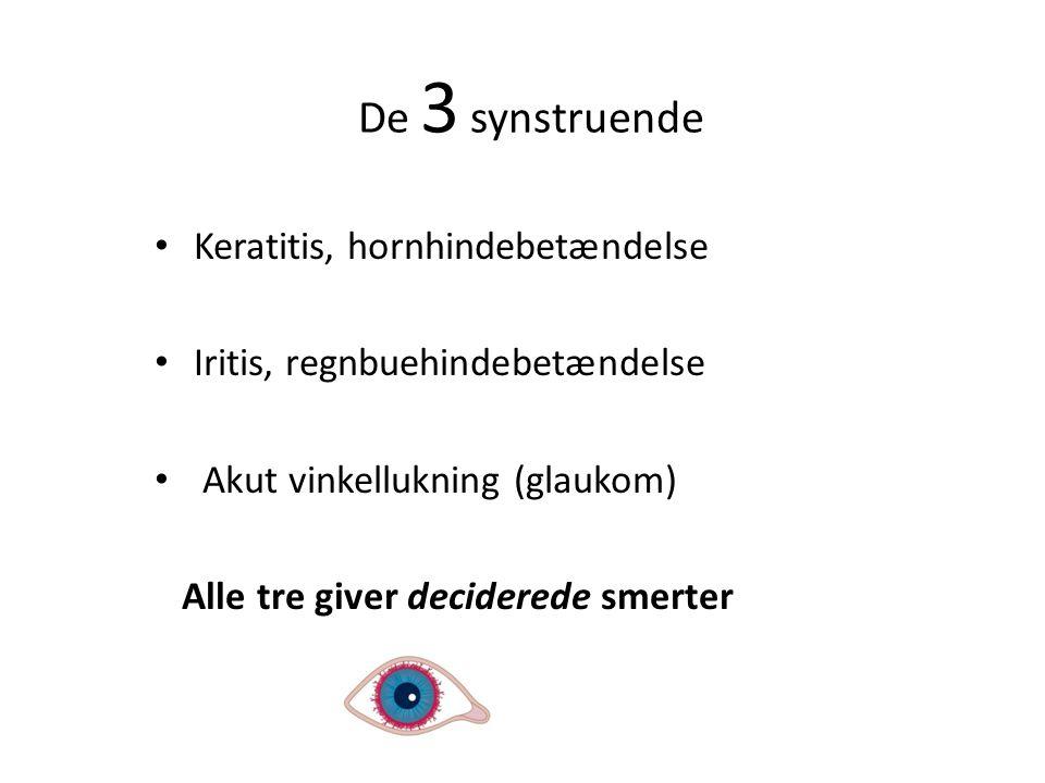 De 3 synstruende Keratitis, hornhindebetændelse