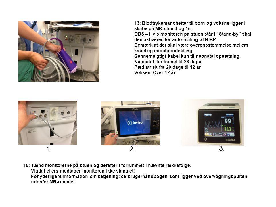 1. 2. 3. 3) 2) Skærmen ved anæstesiapparatet