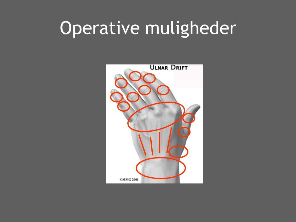 Operative muligheder