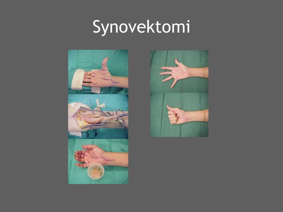 Synovektomi