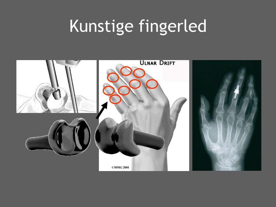 Kunstige fingerled
