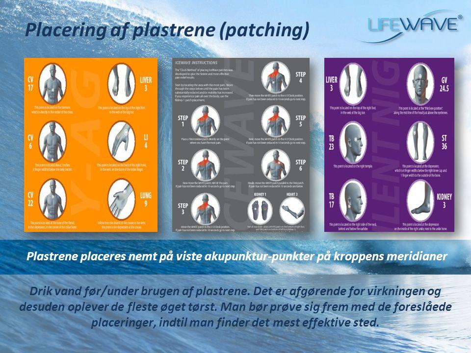 Placering af plastrene (patching)