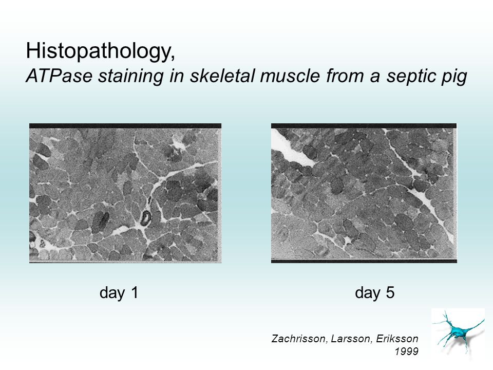 Histopathology, ATPase staining in skeletal muscle from a septic pig