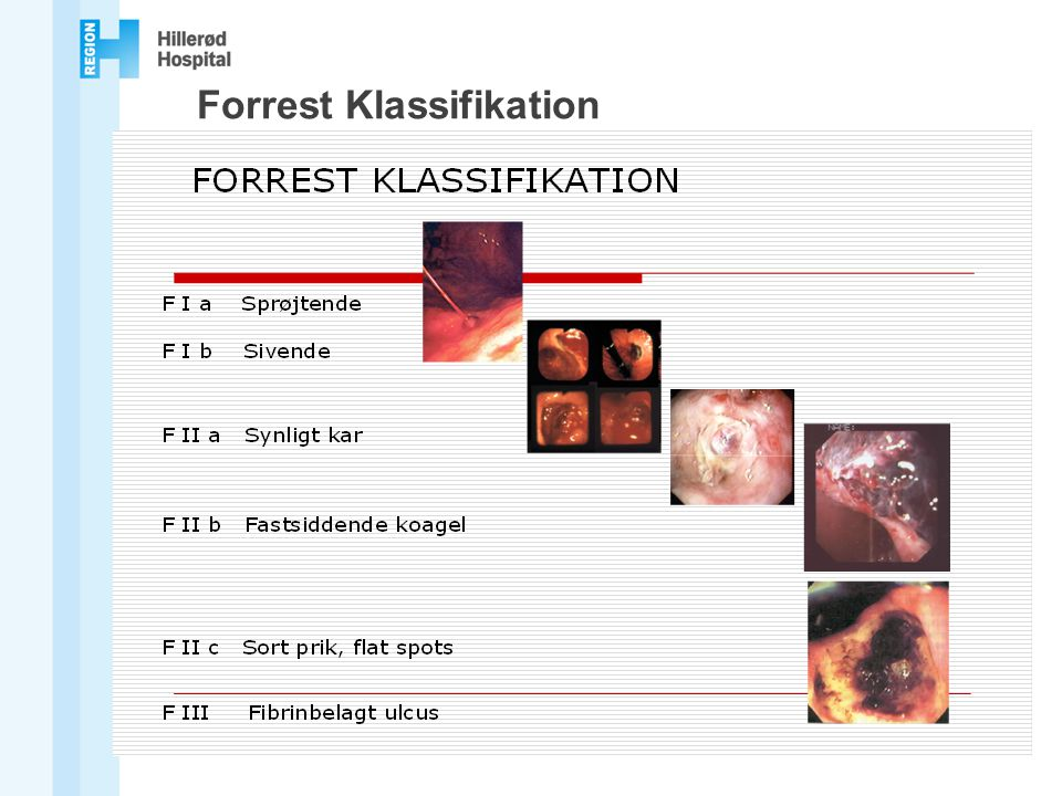 Forrest Klassifikation