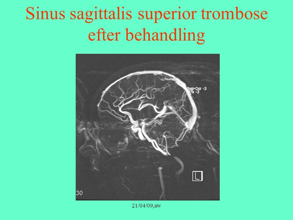 Sinus sagittalis superior trombose efter behandling