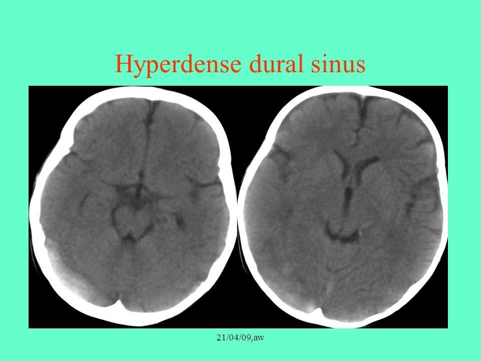 Hyperdense dural sinus