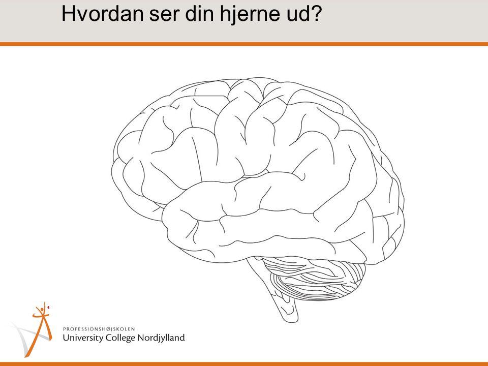 Hvordan ser din hjerne ud