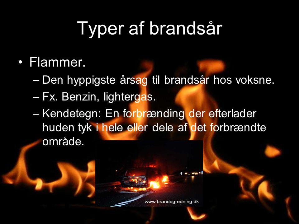 Typer af brandsår Flammer.