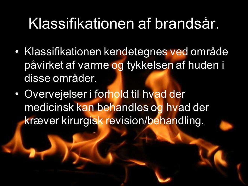 Klassifikationen af brandsår.