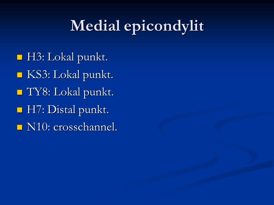 Medial epicondylit H3: Lokal punkt. KS3: Lokal punkt.