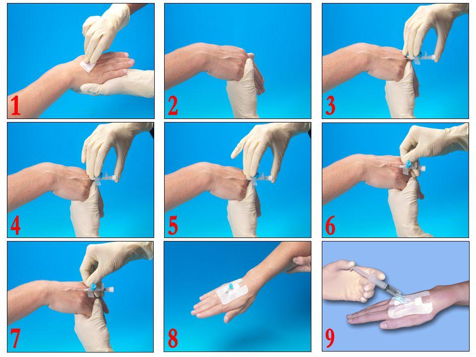 1 2. 3. 4. 5. 6. 0) Anlæg stase. Desinfektion x 2 med lufttørring efter hver afspritning. Find velegnet gaffelvene med lige ben.