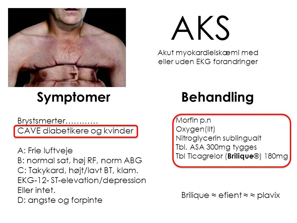 Akut myokardieiskæmi med eller uden EKG forandringer