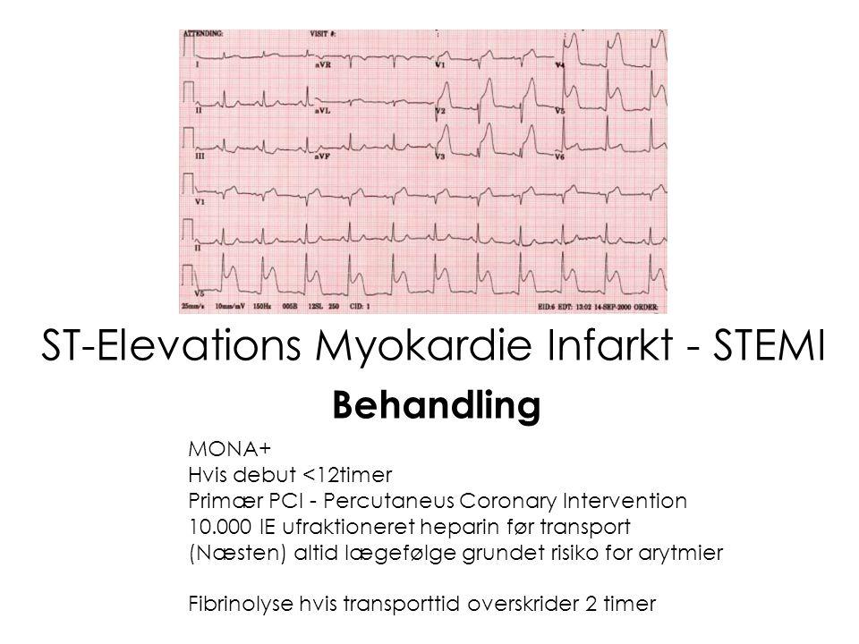 ST-Elevations Myokardie Infarkt - STEMI