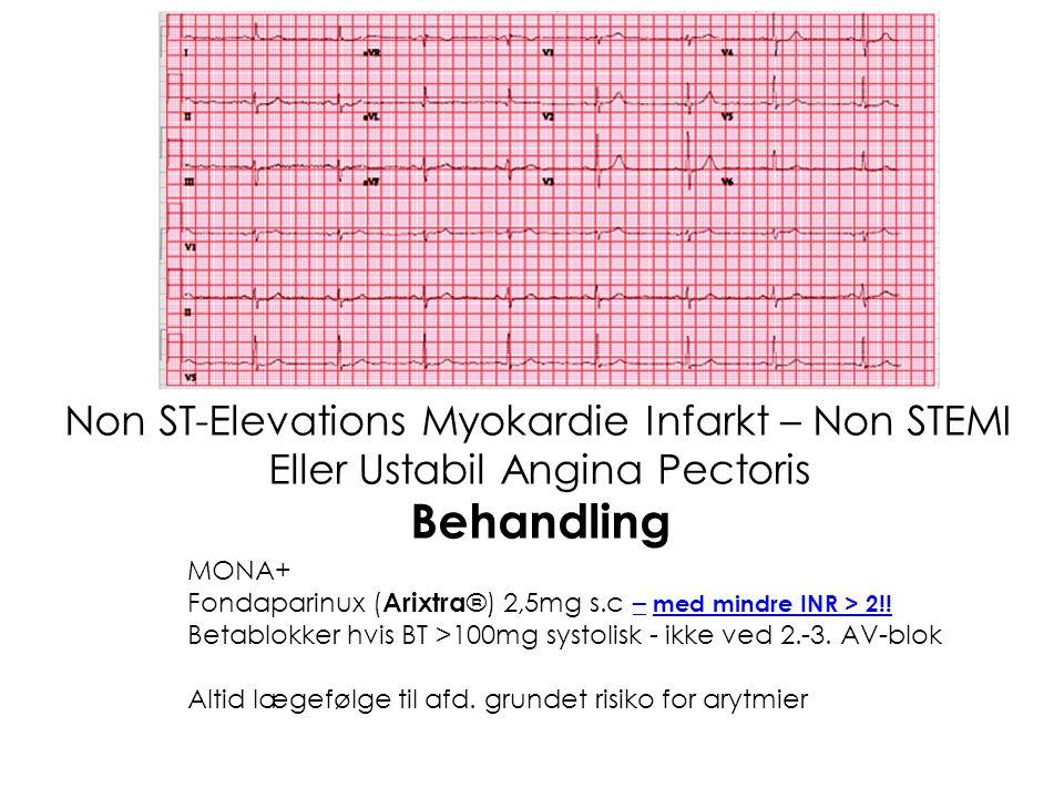 Behandling Non ST-Elevations Myokardie Infarkt – Non STEMI