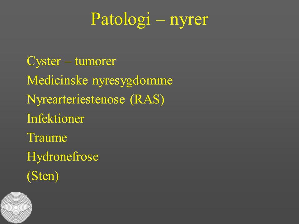 Patologi – nyrer Cyster – tumorer Medicinske nyresygdomme